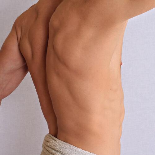 Fotodepilación espalda dorsal